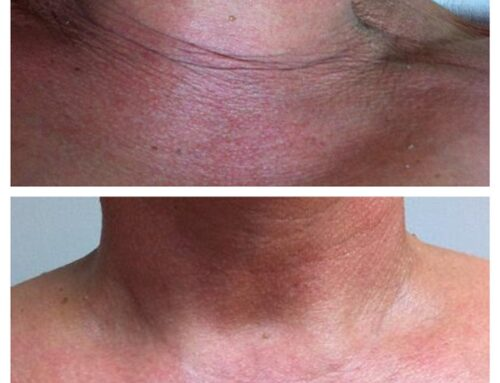 Sun Damage and Pigmentation